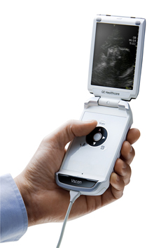 Vscan Pocket-sized, portable ultrasound
